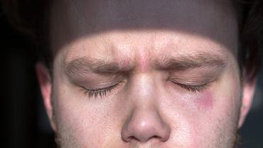 Nietolerancja histaminy to przypadłość, której objawy są podobne do objawów alergii.