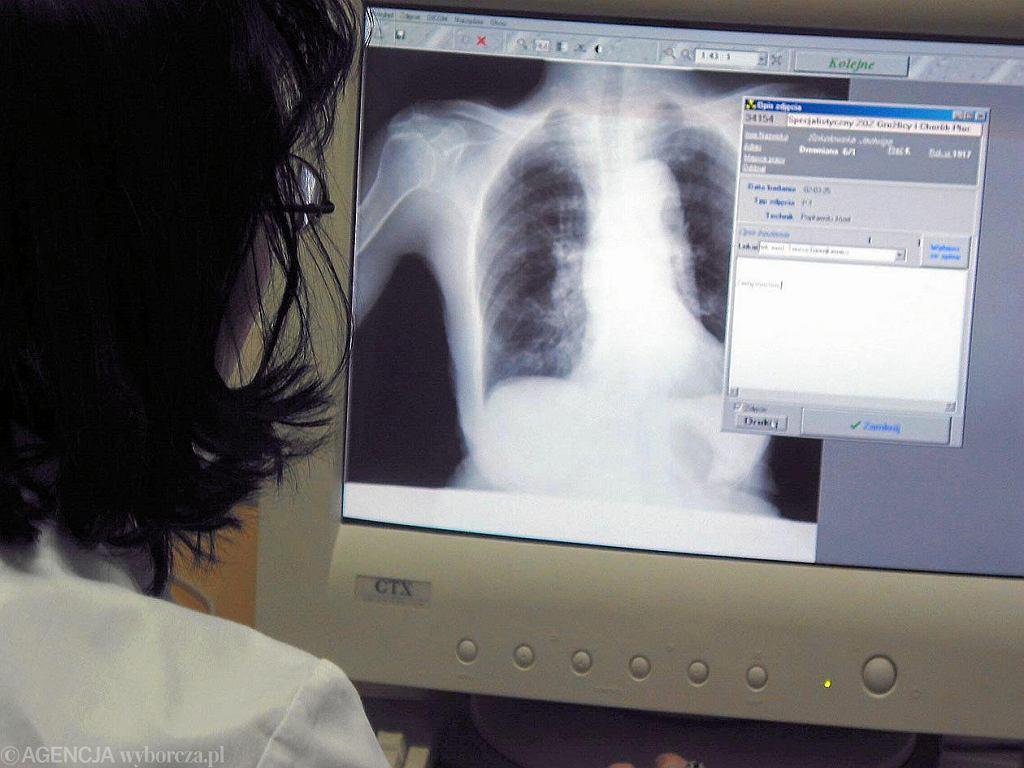 Lekarz rodzinny zaleca badanie płuc po zakażeniu koronawirusem. Tylko możliwości brak