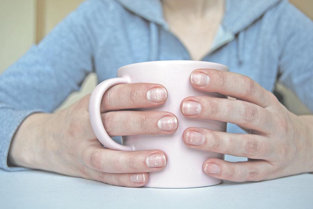 Białe plamki na paznokciach. Co oznaczają? Warto wiedzieć