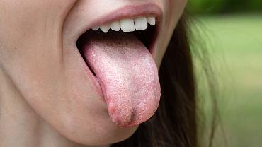 Nystatyna jest antybiotykiem wykorzystywanym m.in. w leczeniu grzybicy jamy ustnej