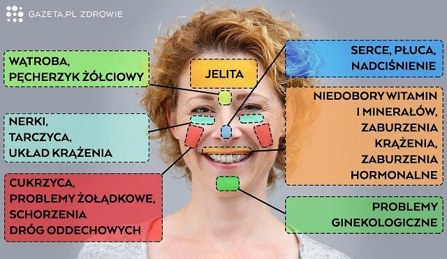 Niektóre problemy czasem ujawniające się na twarzy, wybrane wspólnie z doktorem Robertem Chmielewskim