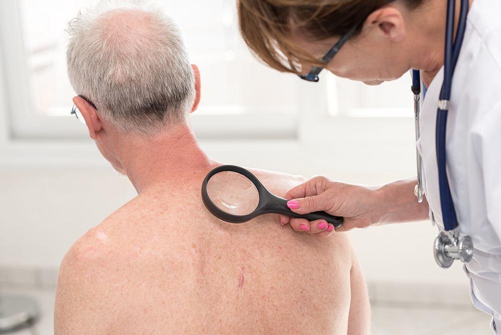 Dermatolog to lekarz zajmujący się diagnozowaniem oraz leczeniem chorób skóry, włosów oraz paznokci