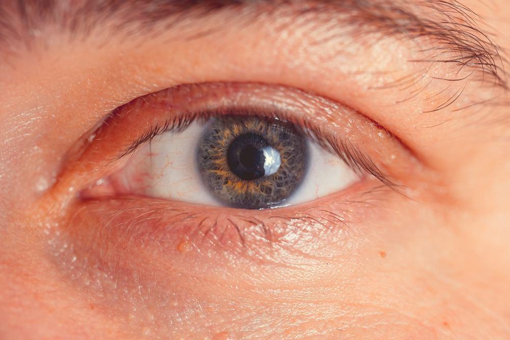 Opuchnięte oczy