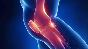 Typowy dla tego nowotworu guz zazwyczaj rozwija się w obrębie kości długich tworzących staw kolanowy