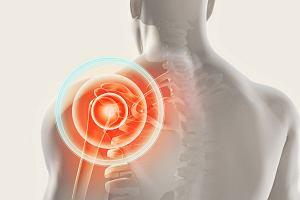 Postępujące kostniejące zapalenie mięśni