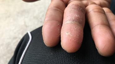 Grzybicę dłoni często można pomylić z innymi schorzeniami czy np. z przesuszeniem skóry, łuszczycą, zapaleniem skóry.