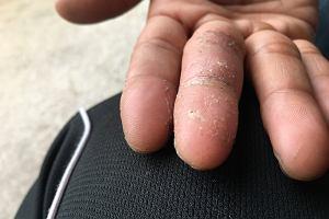 Grzybica dłoni - przyczyny, objawy, leczenie