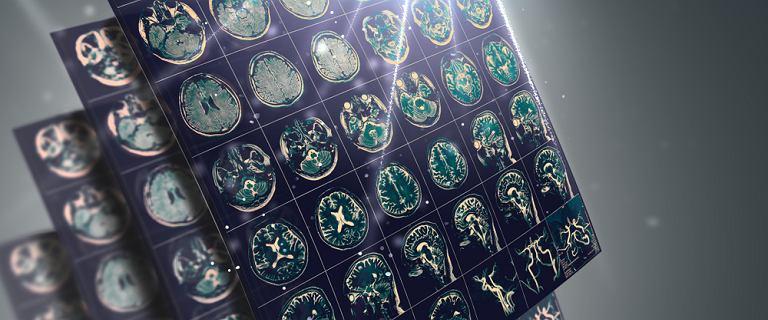 Leczenie światłem i dźwiękiem spowalnia chorobę Alzheimera