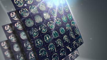 Pulsujące światło może pobudzić mózg do zwalczania choroby Alzheimera
