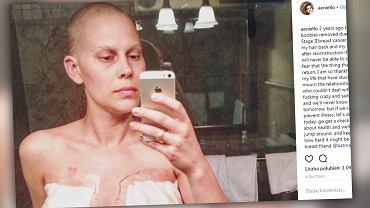 Amanda przeszła podwójną mastektomię.