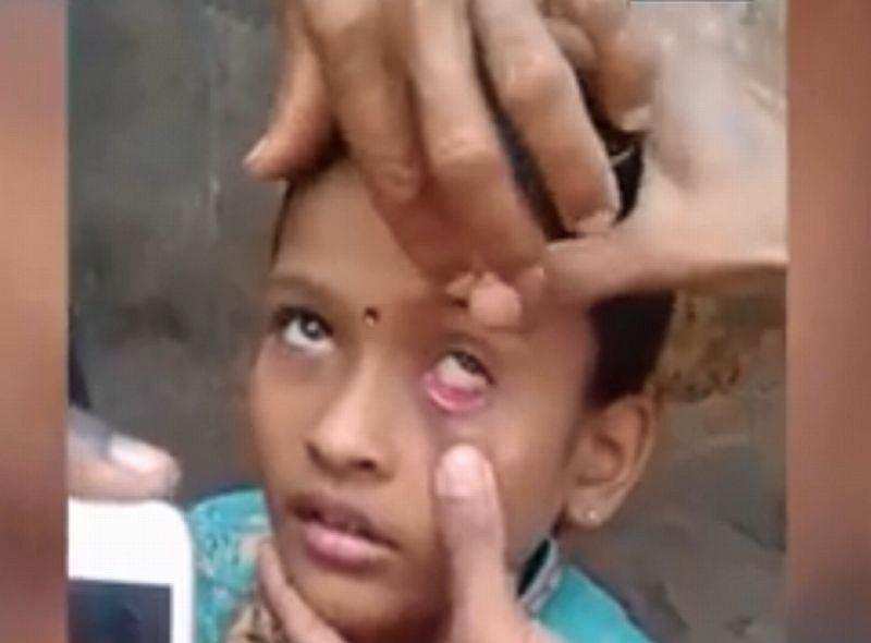 Mrówka w oku dziecka |