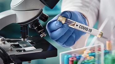Testy laboratoryjne na obecność wirusa COVID-19