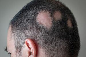 jak zapobiec wypadaniu włosów przy hashimoto