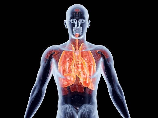 Azbestoza, nazywana też pylicą azbestową to ciężka choroba płuc oraz oskrzeli