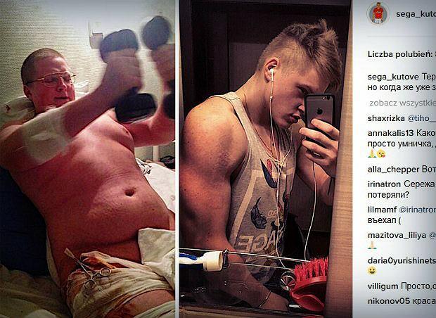 Wypadek Sergeya odmienił jego życie