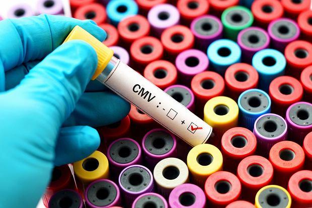 Cytomegalia - objawy, zapobieganie, leczenie