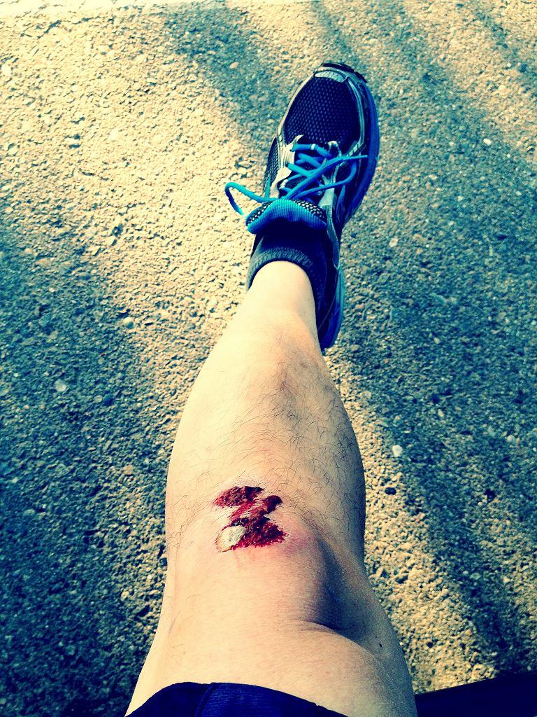 Trudno gojące się rany - czego mogą być oznaką?