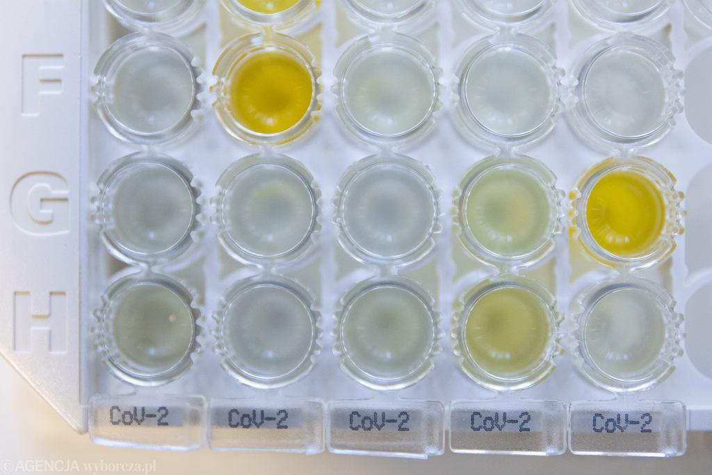 Kasetka z testami na koronawirusa. Kolor żółty oznacza próbkę z przeciwciałami