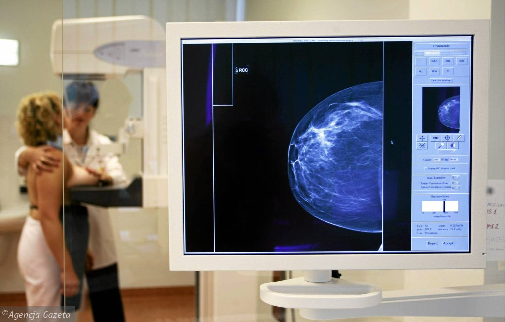 Badanie mammograficzne w jednym z centrów onkologii