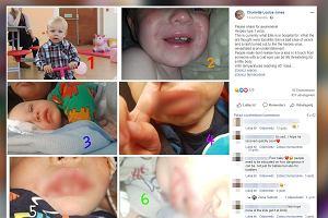 Mama ostrzega rodziców: Nie całujcie dzieci, gdy jesteście przeziębieni. Opryszczka u dziecka to poważne zagrożenie
