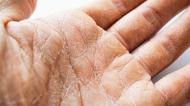 Sucha skóra na dłoniach, zdjęcie ilustracyjne