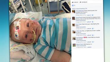 W trakcie skomplikowanego leczenia stracił palce u rąk i lewą nogę. Jednak najważniejsze jest to, że przeżył. Teraz jest wesołym 3-latkiem.