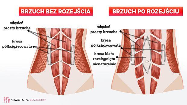 Rozejście mięśnia prostego brzucha (RMPB) to nie tylko problem estetyczny, ale przede wszystkim zdrowotny, prowadzący do wielu przykrych dolegliwości, w tym nietrzymania moczu czy kału