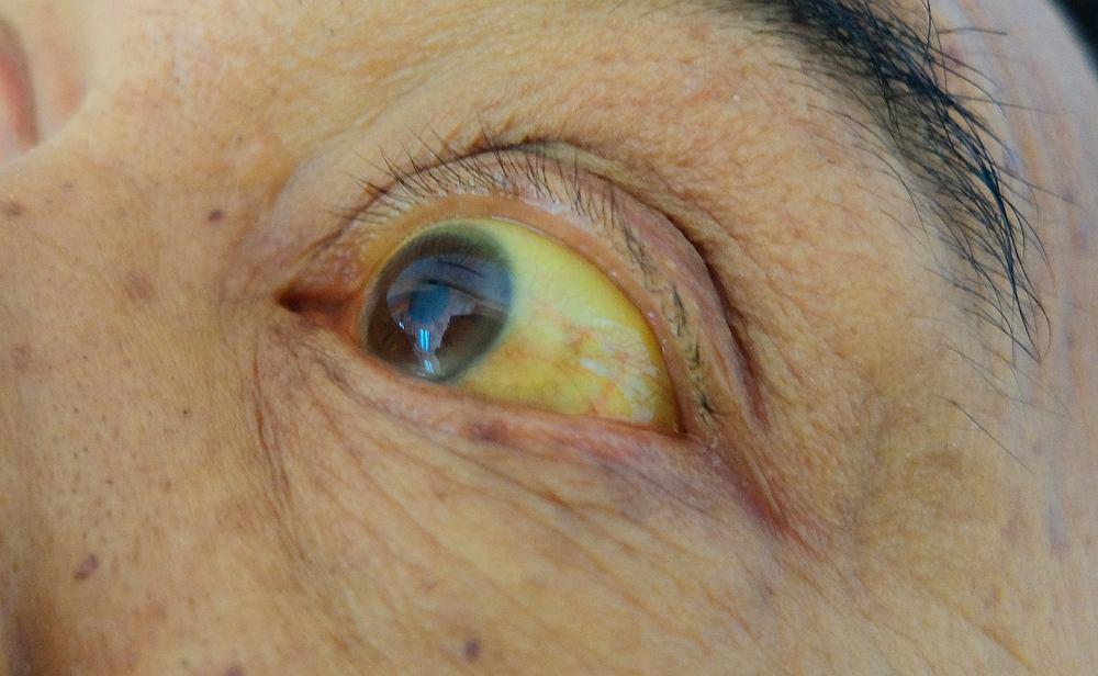 Bilirubina jest to bardzo ważny związek chemiczny, którego wzrost może świadczyć o chorobie wątroby