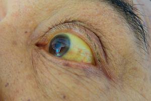 Żółtaczka: rodzaje, objawy, leczenie