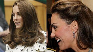 Księżna Kate ma dużą bliznę na głowie, którą chowa pod włosami. Ma ją po operacji