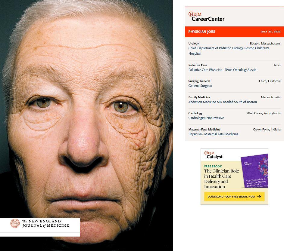 Po 28 latach takiego działania skóra jest widocznie starsza, bardziej pomarszczona, obwisła