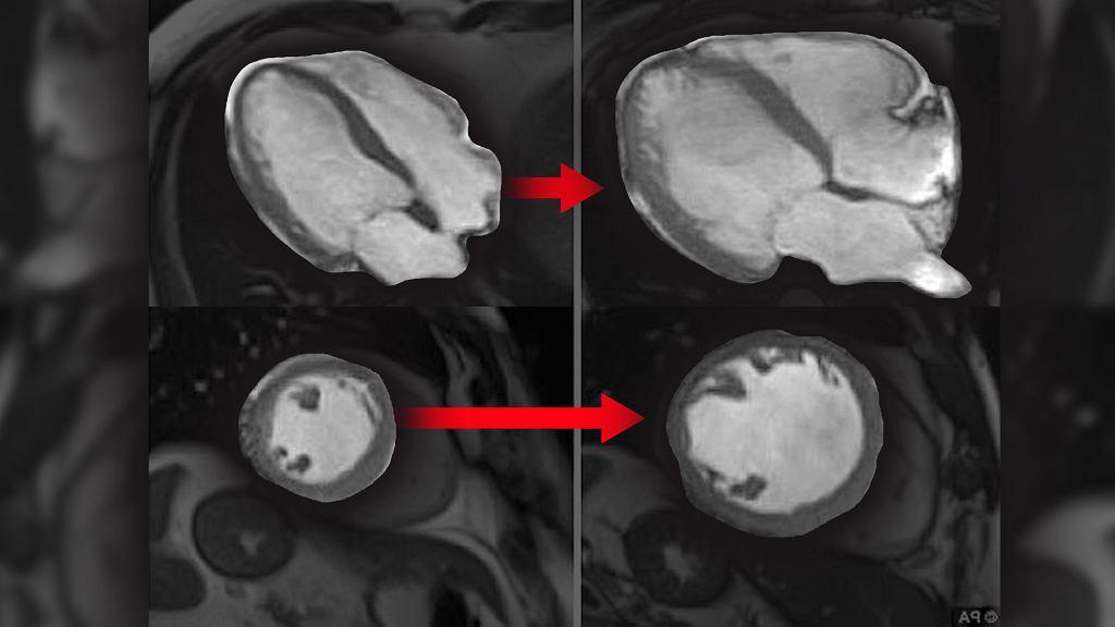 Chorzy na kardiomiopatię alkoholową mają o wiele większe serce (po lewej na górze i na dole) niż osoby zdrowe