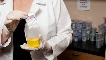 Mocznik jest naturalnie występującym w organizmie organicznym związkiem chemicznym