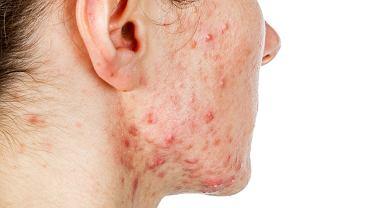 Trądzik torbielowaty to problem, z którym sami się nie uporamy, po pomoc należy zwrócić się do dermatologa.