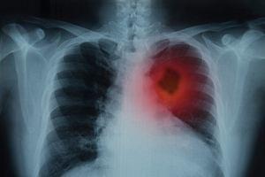 Rak płuc - przyczyny, objawy, leczenie