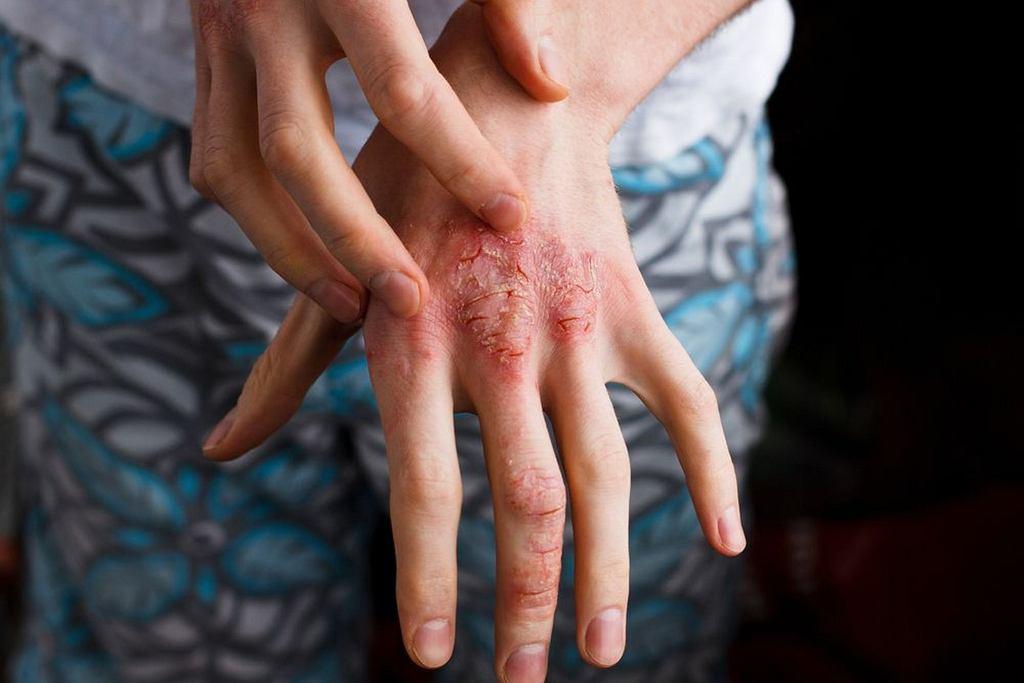 Skóra atopowa jest niezwykle uciążliwa. Jej najczęstsze objawy to suchość skóry, złuszczanie się i rogowacenie oraz podrażnienia