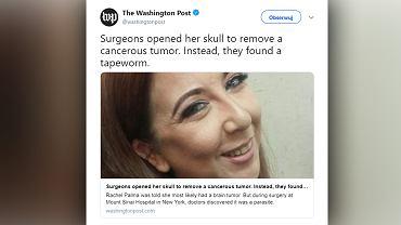 Chirurdzy otworzyli czaszkę pacjentki, żeby usunąć guza mózgu. Okazało się, że w środku kryje się nie nowotwór, a larwa tasiemca