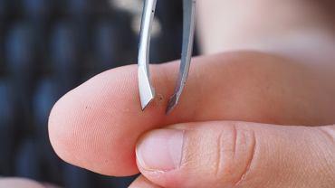 Lekarze zalecają, aby zawsze usuwać drzazgi. Nieusuwane mogą prowadzić do infekcji