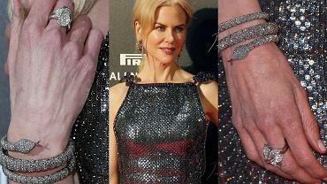 """Nicole Kidman właśnie promuje swój najnowszy film """"Lion. Droga do domu"""". Na czerwonym dywanie aktorka jak zawsze zachwycała. Od lat mówi się jednak, że 49-letnia gwiazda poddaje się rozmaitym zabiegom medycyny estetycznej. Jej twarz jest gładka, ma wyraźny kontur i na próżno szukać na niej jakichkolwiek oznak tego, że czas umyka. Jedynym szczegółem, który zdradza wiek Kidman, są jej... dłonie. Patrząc na zbliżenia, aż trudno uwierzyć, że to jedna i ta sama osoba. A jak jest w przypadku innych gwiazd? Zajrzyjcie do galerii i przekonajcie się sami!"""