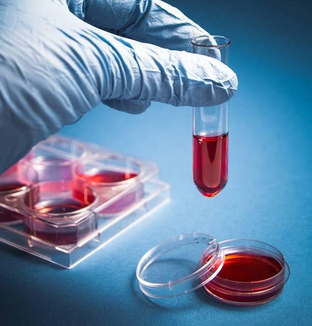 Najcenniejszym materiałem znajdujący się we krwi pępowinowej są komórki macierzyste