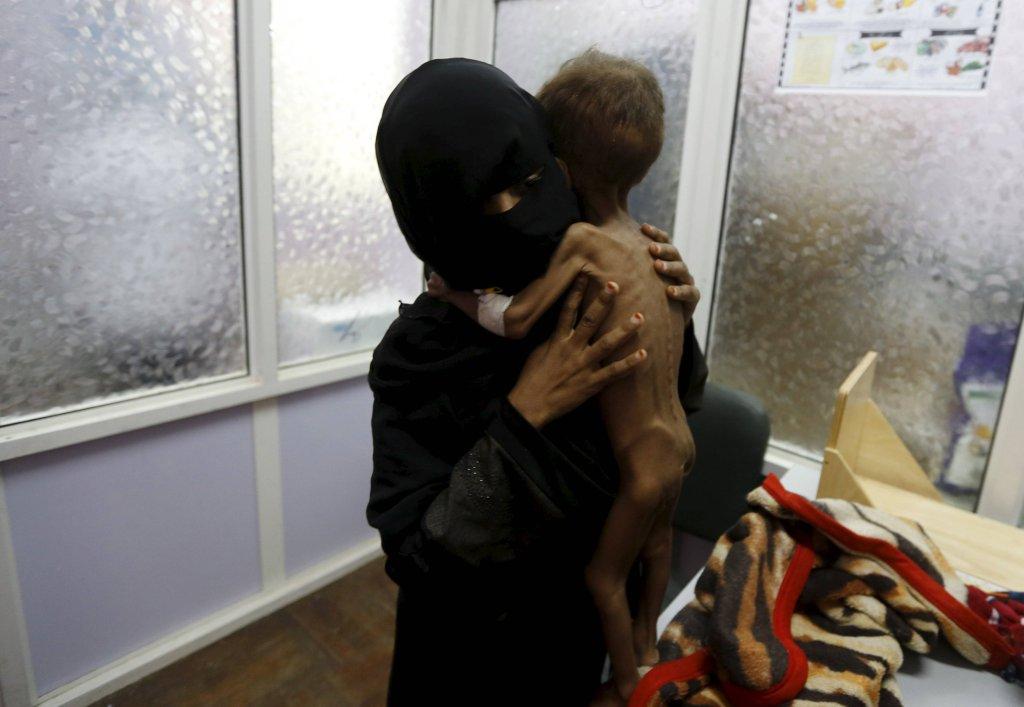 Majed Ayyash, 21-miesięczny chłopiec z matką w szpitalu w Sanie
