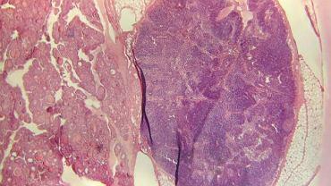 Pierwsze objawy choroby są niemal niezauważalne. Dopiero w zaawansowanej postaci w badaniu histopatologicznym widoczne są zmiany chorobowe