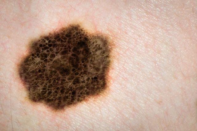 Rak skóry bardzo często rozwija się przez wiele lat nie dając przy tym żadnych objawów