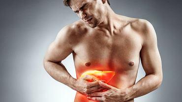Zapalenie wątroby może wywołać bardzo wiele czynników, jednak niezależnie od przyczyny konieczna jest konsultacja z lekarzem