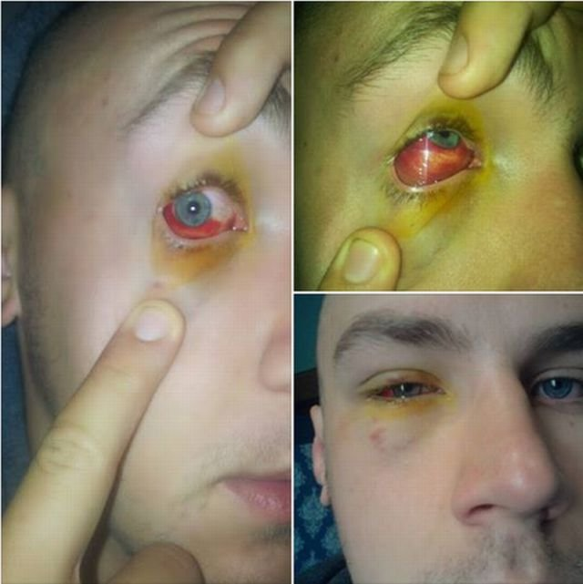 Oko rugbisty Skry Pawła Poniatowskiego