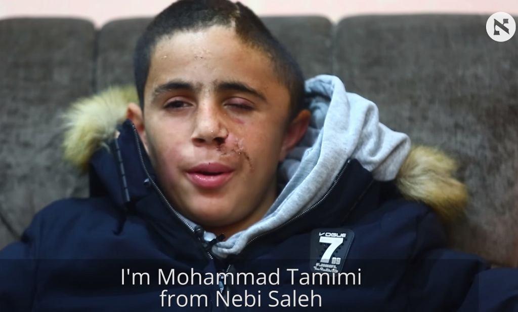 Mohammed Tamimi, palestyński 15-latek który stracił fragment czaszki po postrzale