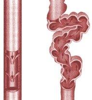 Wsteczny przepływ krwi w niewydolnej zastawce flebolodzy określają mianem refluksu