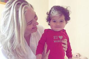 Dziewczynka ma dwa kolory włosów od urodzenia. To ma związek z rzadką chorobą genetyczną
