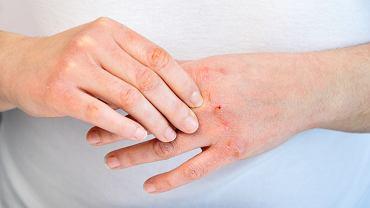 Co na suche i spierzchnięte dłonie? Pomoże krem za 6 zł