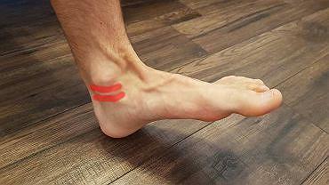 Kontuzja stopy: ścięgno mięśnia piszczelowego tylnego